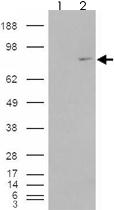 PAB7372 - MEPCE / BCDIN3