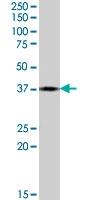 PAB7411 - Proenkephalin-A (PENK)