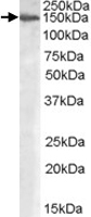 PAB7421 - Alpha-Mannosidase 2 / MAN2A1