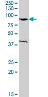 PAB7442 - Exonuclease 1 (EXO1)