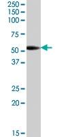 PAB7447 - Aromatase