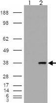 PAB7494 - Monoglyceride lipase