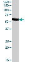 PAB7518 - Arylsulfatase A