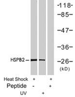 PAB7676 - HSPB1 / HSP27