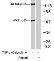 PAB7686 - NF-kB p105 / p50