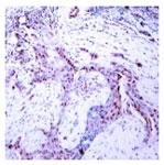 PAB7717 - Progesterone receptor