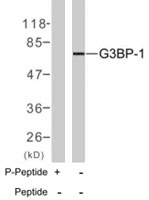 PAB7719 - G3BP1 / G3BP