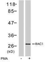 PAB7743 - RAC1