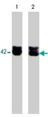 PAB7880 - Actin beta / ACTB