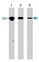 PAB7893 - CD324 / Cadherin-1
