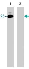 PAB7907 - B-Raf proto-oncogene