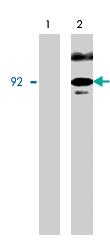 PAB7914 - Catenin beta-1