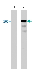 PAB7916 - CD104 / Integrin beta-4