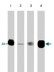 PAB7924 - Junction plakoglobin