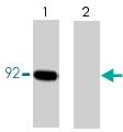 PAB7925 - Catenin beta-1