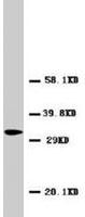 PAB7962 - CD154 / CD40L