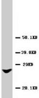 PAB7965 - GJB2 / Cx26