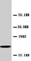 PAB7968 - C-reactive protein (CRP)