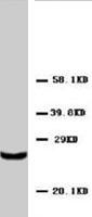PAB8015 - TIMP4