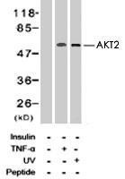 PAB8183 - AKT2 / PKB beta