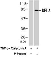 PAB8192 - RELA / NF-kB p65