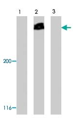 PAB8474 - Cubilin