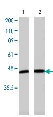 PAB8501 - Adiponectin Receptor 1