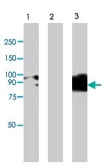 PAB8503 - TRPV4 / Vanilloid receptor-like protein 2
