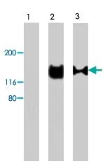 PAB8511 - Podocalyxin / PODXL