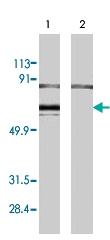 PAB8517 - Estrogen receptor alpha