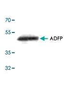 PAB8531 - Adipophilin / ADFP