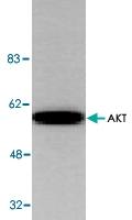 PAB8534 - AKT1 / PKB