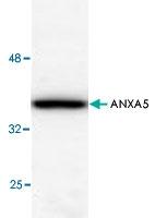 PAB8537 - Annexin A5 / ANXA5