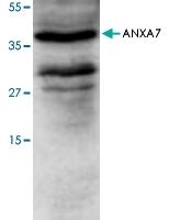 PAB8538 - Annexin A7 / ANXA7