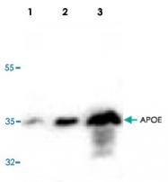 PAB8547 - Apolipoprotein E / Apo E