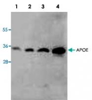 PAB8548 - Apolipoprotein E / Apo E