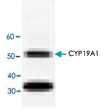 PAB8551 - Aromatase
