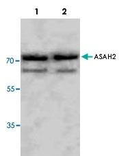 PAB8552 - Neutral ceramidase / ASAH2