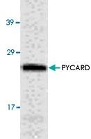 PAB8553 - CARD5 / PYCARD / ASC