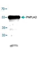 PAB8557 - PNPLA2 / ATGL