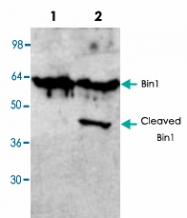 PAB8581 - BIN1 / AMPHL