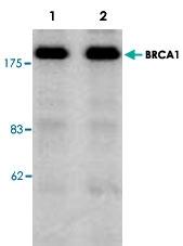 PAB8595 - BRCA1 / RNF53