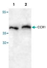 PAB8640 - CD191 / CCR1