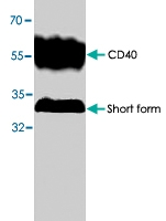 PAB8645 - CD40