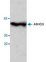 PAB8649 - ABHD5