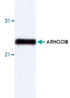 PAB8668 - ARHGDIB / D4-GDI