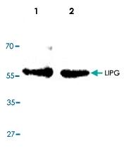 PAB8699 - LIPG