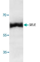 PAB8702 - CD62E / E-Selectin