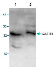 PAB8703 - SULT1E1