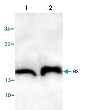PAB8719 - FIS1 / TTC11